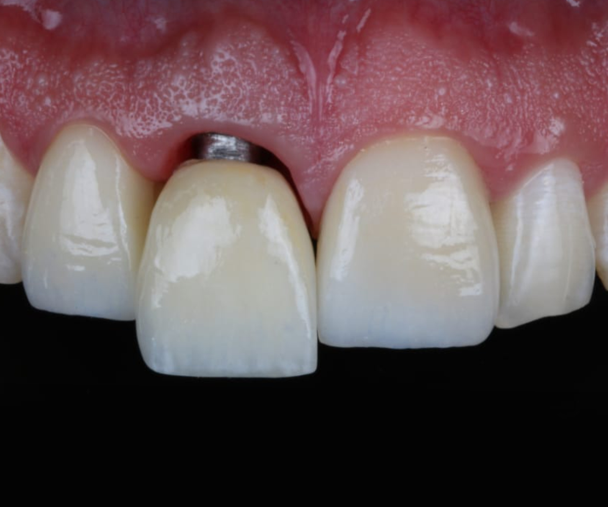 implantes dentales cañaveral