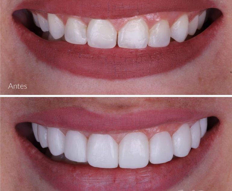 Odontologia estetica en Bucaramanga