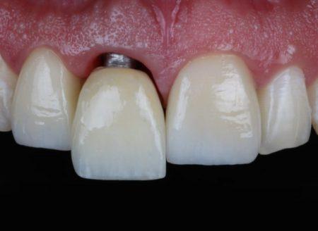 implantes dentales cañaveral