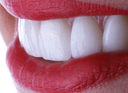 rehabilitacion oral bucaramanga